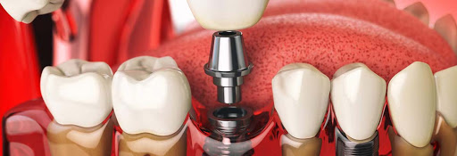 dental implants dental implants Dental Implants – How They Can Help You 2019 07 18
