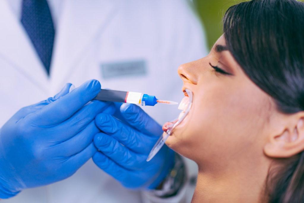 teeth whitening teeth whitening Teeth Whitening Done By A Professional teeth whitening procedure EHUT86F 1024x684