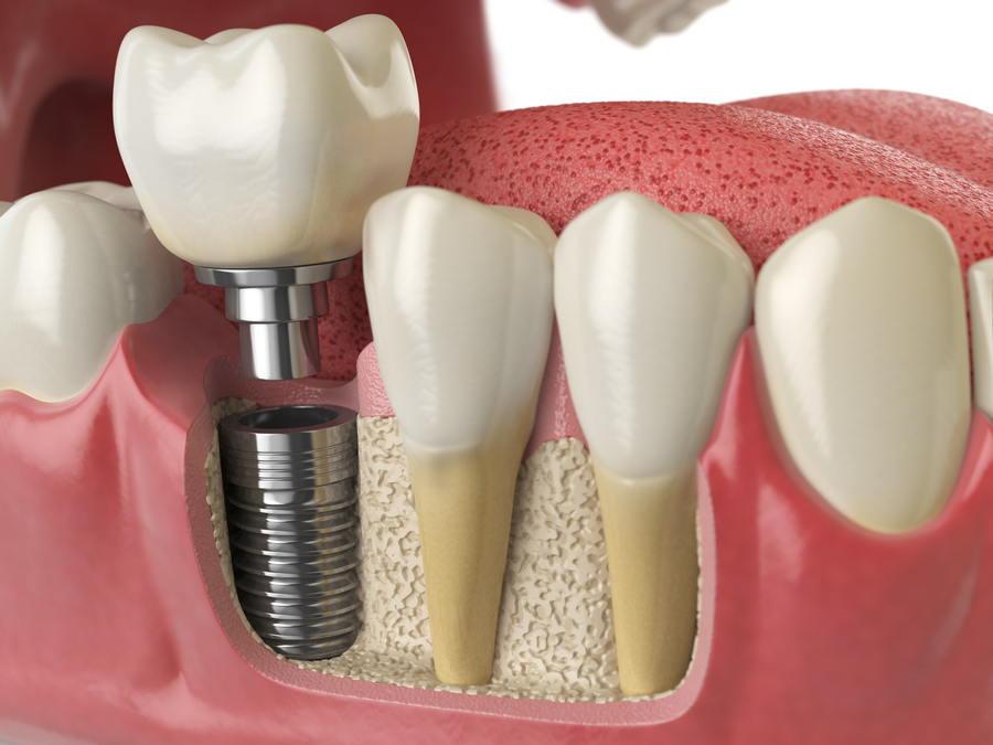 The Benefits of Dental Implants dental implants The Benefits of Dental Implants DentalImplants 01