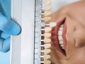What Are The Benefits Of Veneers